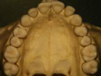 Orthodontic Appliances | Homon Orthodontics | Powell Ohio